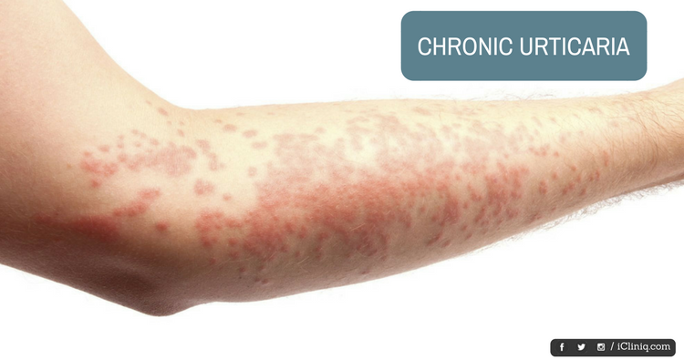 Image: Autologous Serum Therapy - a Newer Approach in Management of Chronic Urticaria