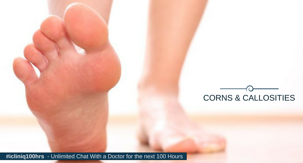 Corns, Callosities, and Plantar Warts