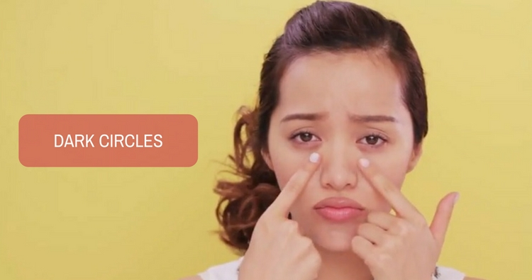 Dark Circles - a Common Cosmetic Concern