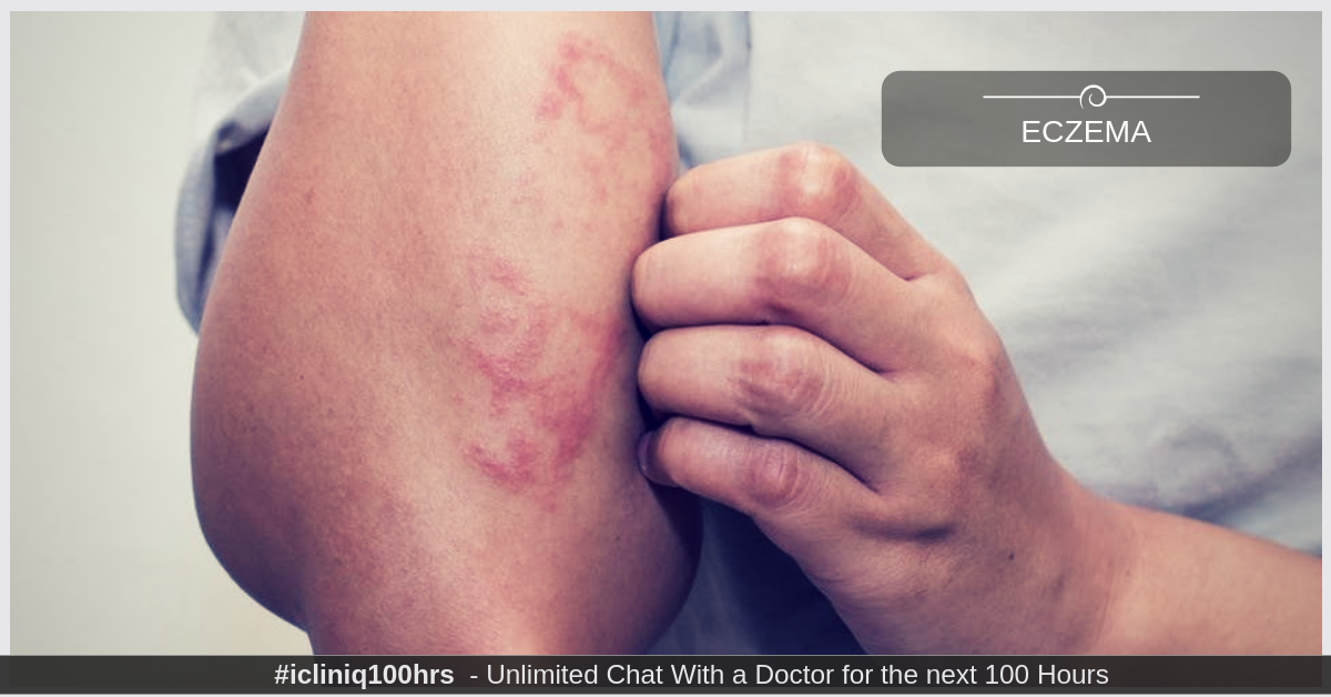 Image: Eczema - Treatment and Prevention