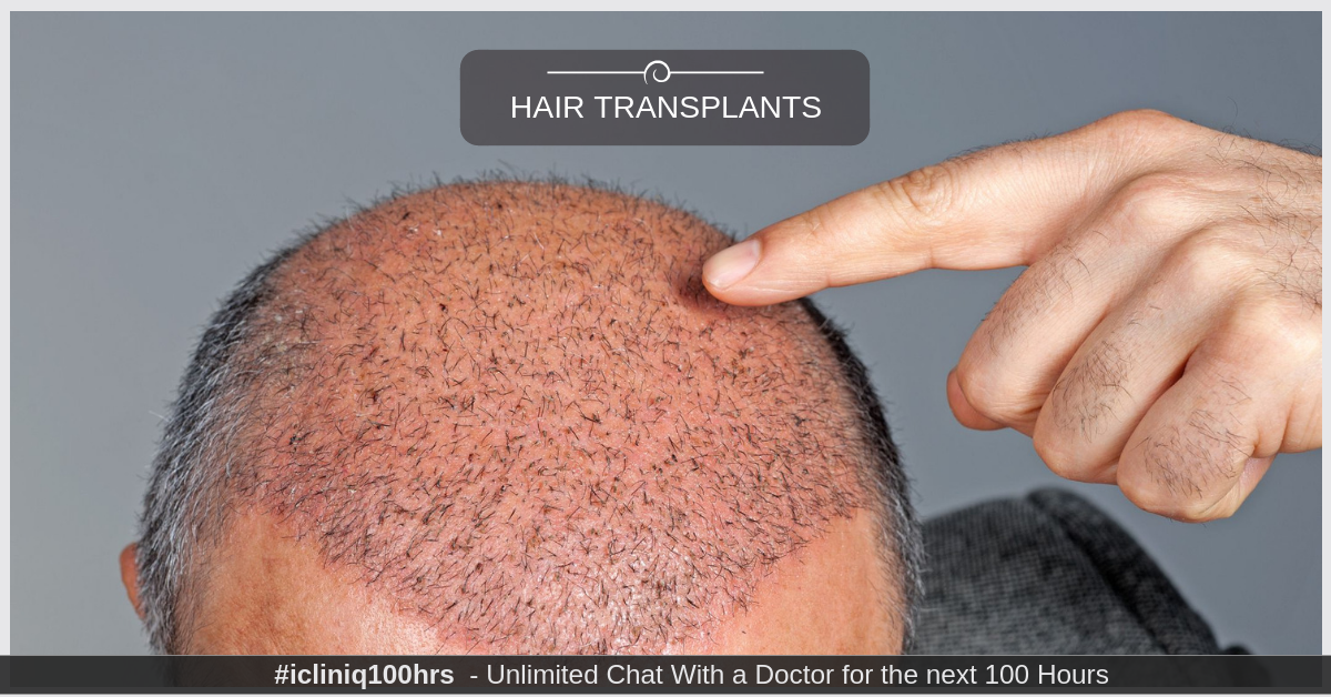 Image: Everything You Need to Know About Hair Transplants