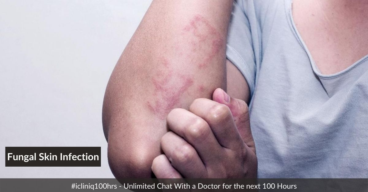 Fungal Skin Infections - Types, Symptoms, and Treatment