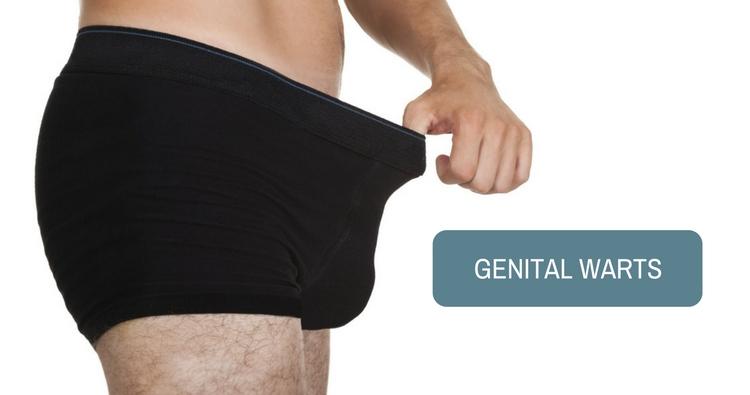 Genital Warts (Condylomata Acuminata) - a Sexually Transmitted Infection