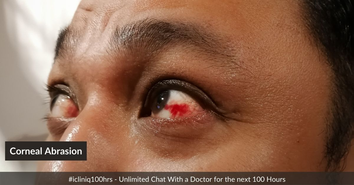 Image: How to Relieve the Pain Caused by Corneal Abrasion?