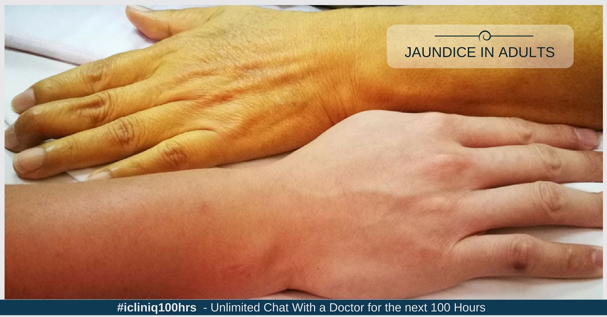 Jaundice in Adults: An Overview - Types | Symptoms | Risk Factors | Diagnostic Tests | Treatment