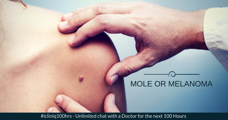 Image: Mole or Melanoma: When to Worry?