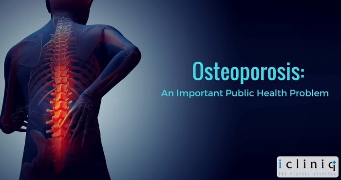 Image: Osteoporosis: an Important Public Health Problem