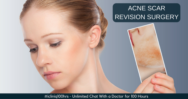 Image: Types and Techniques of Acne Scar Revision Surgery