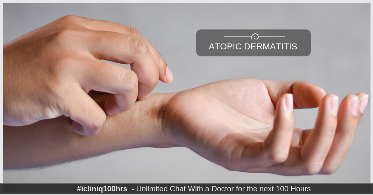 Image: What Is Atopic Dermatitis?