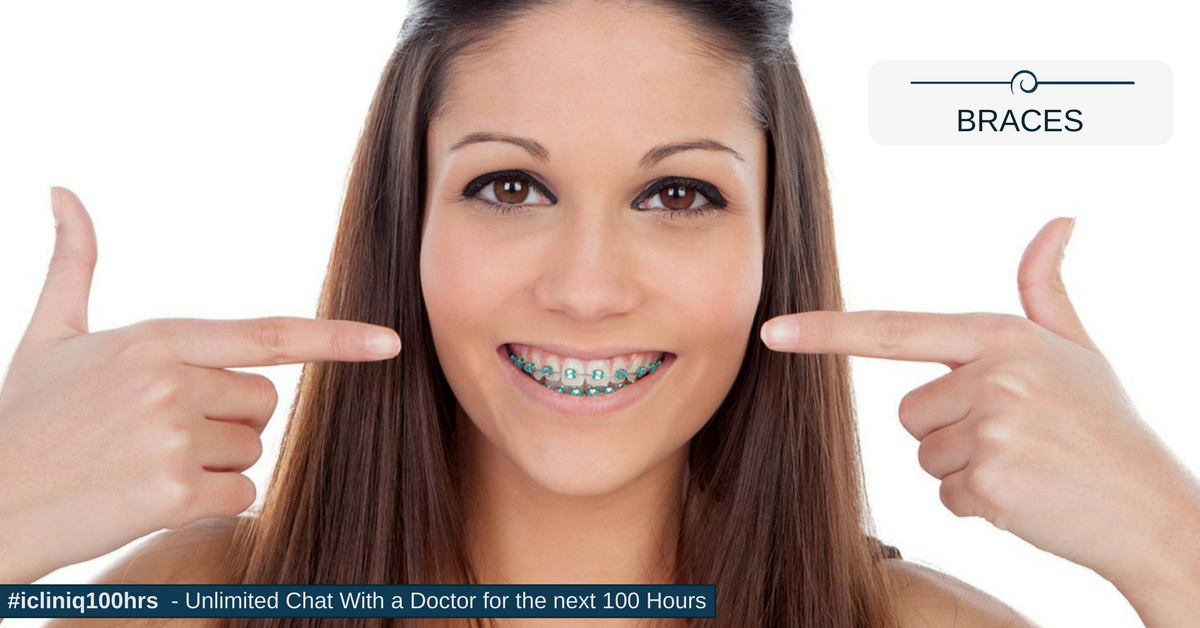 Image: When Do You Need Braces??