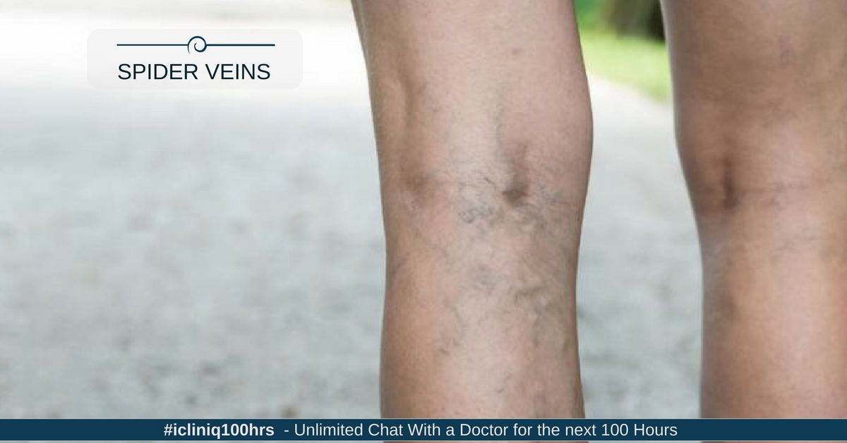Are spider veins related to Ehlers-Danlos syndrome?