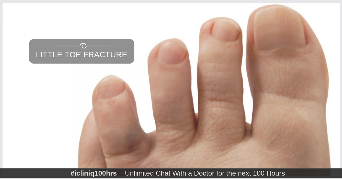 How to correct little toe fracture?