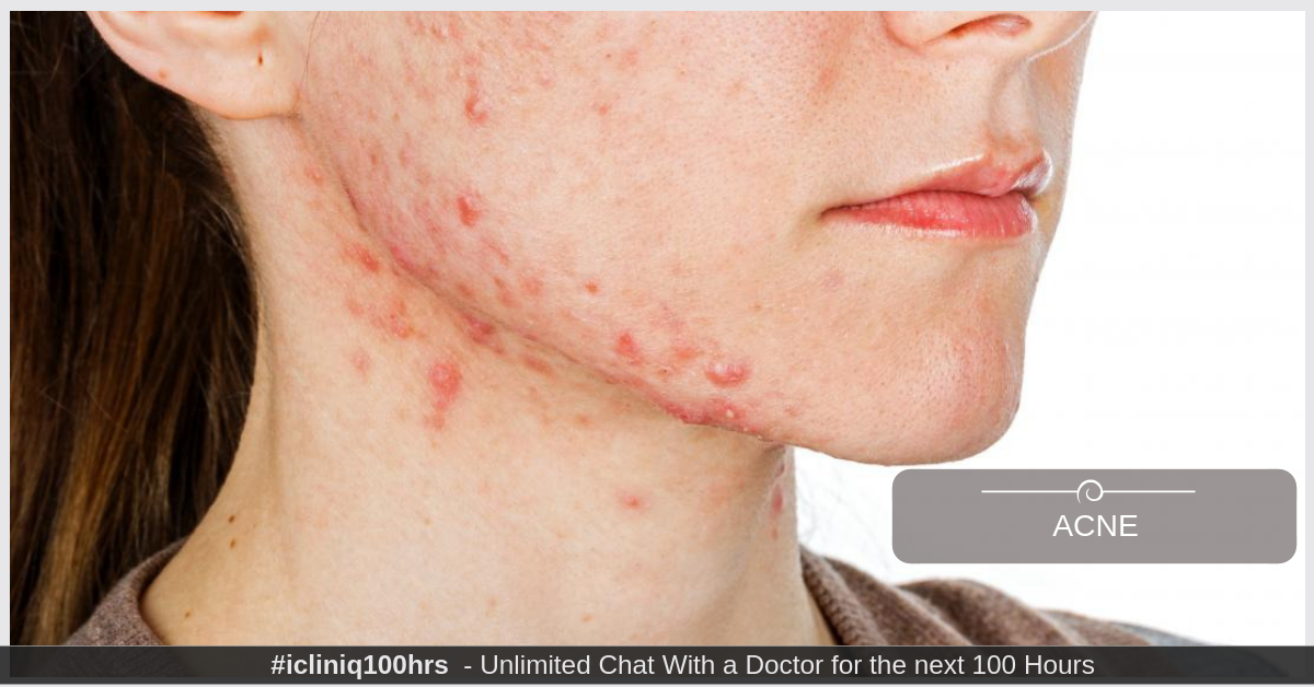 Image: How to get rid of the acne on my cheeks, chin, jawline and neck.
