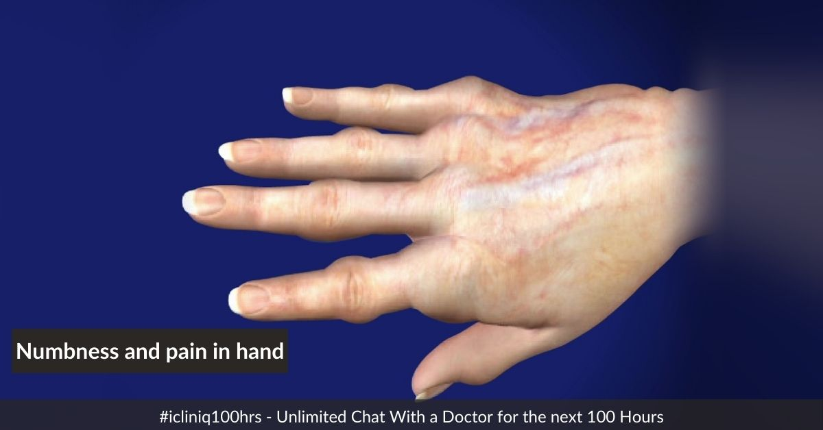 I am suffering from numbness and pain in my hand that spreads to my arms. What is the treatment?