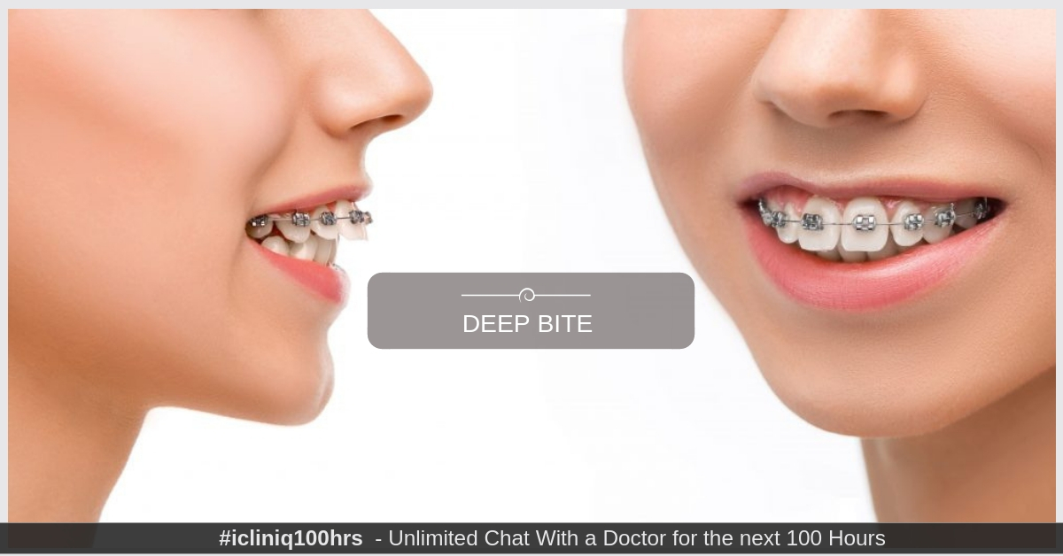 Image: If I get braces for deep bite, will it affect my face profile?