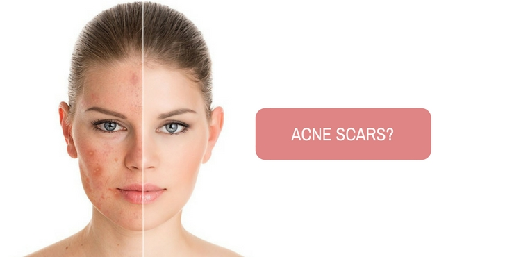Image: Is laser treatment safe for acne scars?