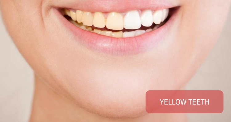 Image: My teeth are yellow. Is scaling only a temporary process to clean the teeth?