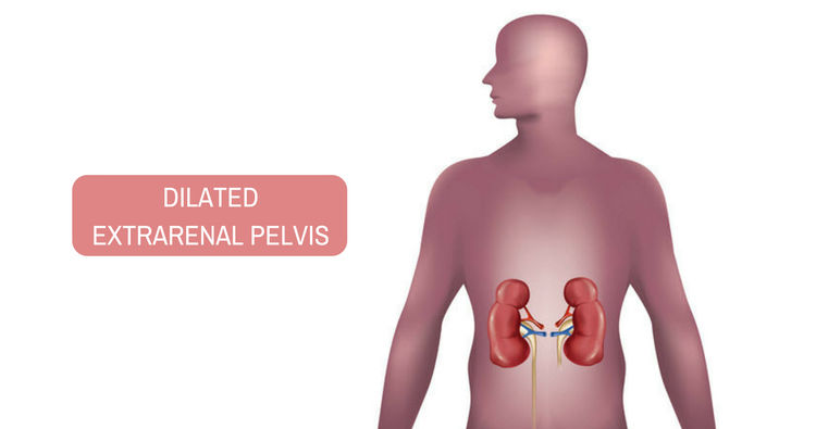 What does dilated extrarenal pelvis mean?