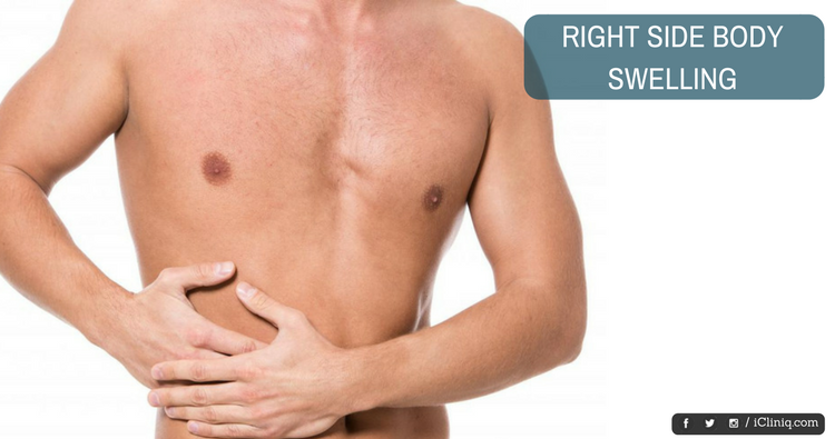 What is the reason for right side body swelling?