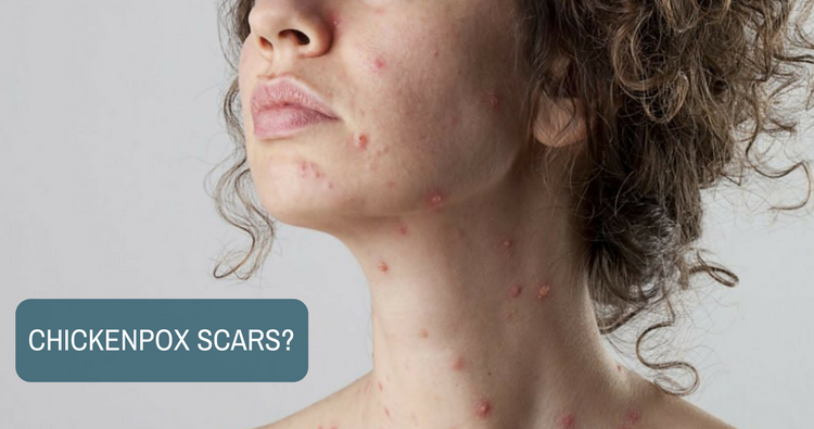 Image: What should I use to avoid chickenpox scars?