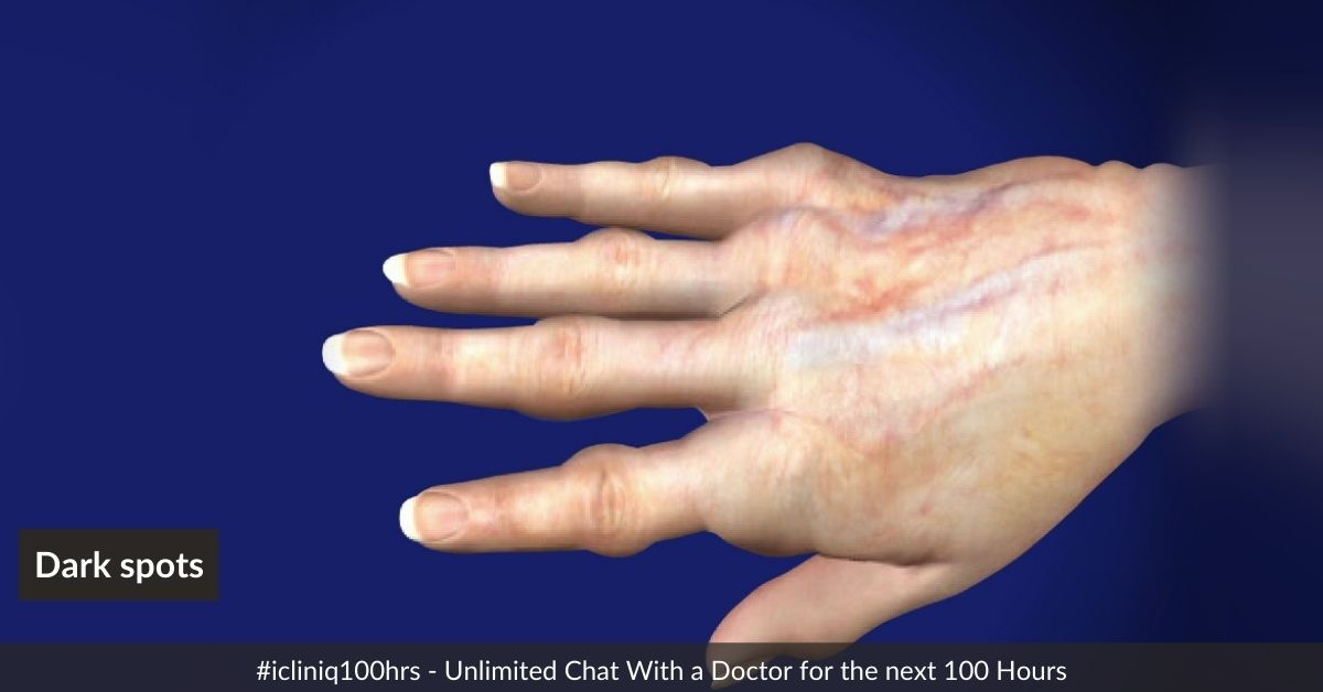 Image: Why do I have dark spots on my fingers and knuckles?