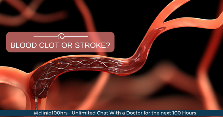 Image: Will high platelet count cause a blood clot or stroke?
